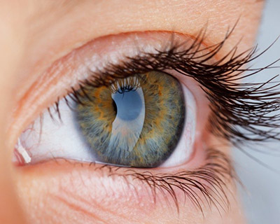 Irisdiagnose-400